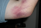 Травми в лакътната област