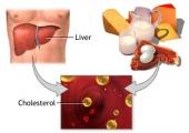 Холестеролът – добър или лош?