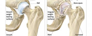 Остеонекрозата – Костната смърт, която може да ви струва движението