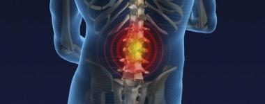 Още за приплъзването на гръбнака – Спондилолистеза