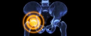 Коксартроза или как тежестите изяждат тазобедрената ви става
