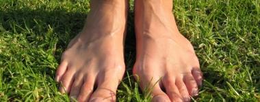 Бунион – Нелицеприятното подуване на ставите или проклятието на острите и тесни обувки