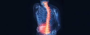 Болките в кръста, родени в гръдно-поясното съчленение на гръбнака