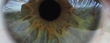 Храна за очите