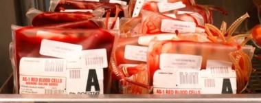 Кръвната група предопределя сърдечно-съдовите заболявания?
