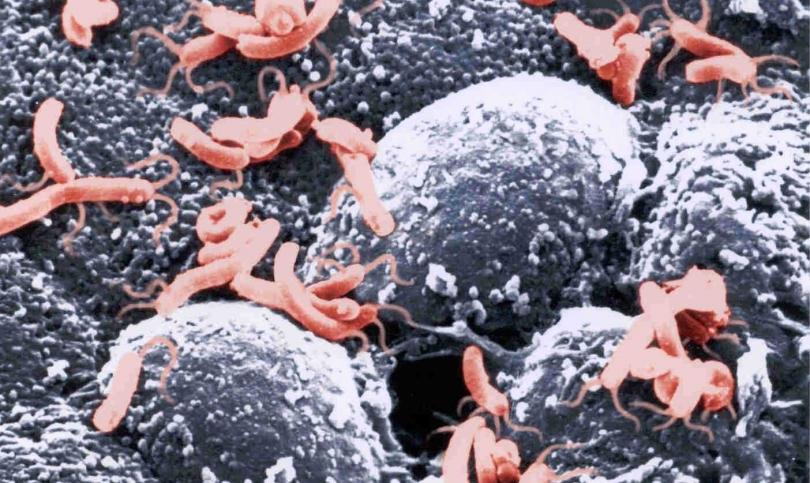 Един на всеки 6 случая на рак е предизвикан от предотвратима инфекция
